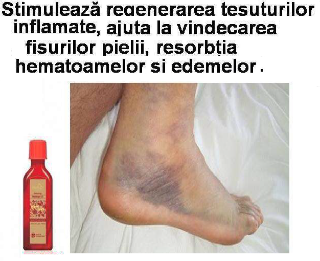 regenerarea tesuturilor inflamate, hematoame si edeme